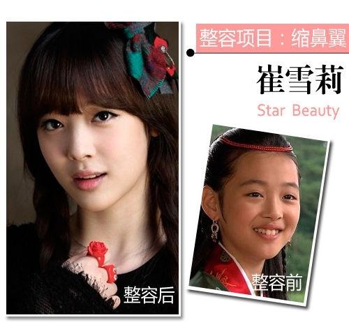 天然or整容 韩国假脸女神的整形项目 - 嘉人marieclaire - 嘉人中文网 官方博客
