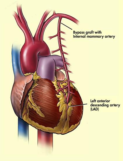جزوه ی قلب (فردین جوادی)