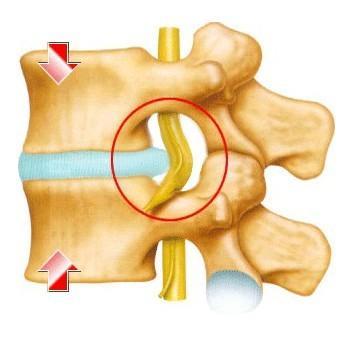 针刺法治疗颈椎椎间盘突出症