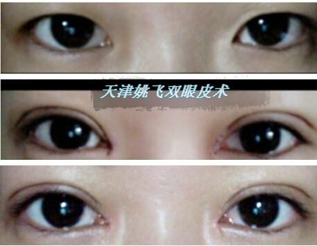 天津内双如何变外双眼皮